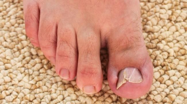 nail flat