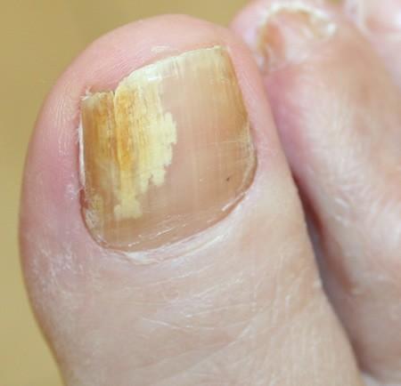 nail fungal