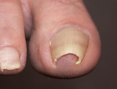 nail involuted
