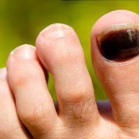 nail trauma