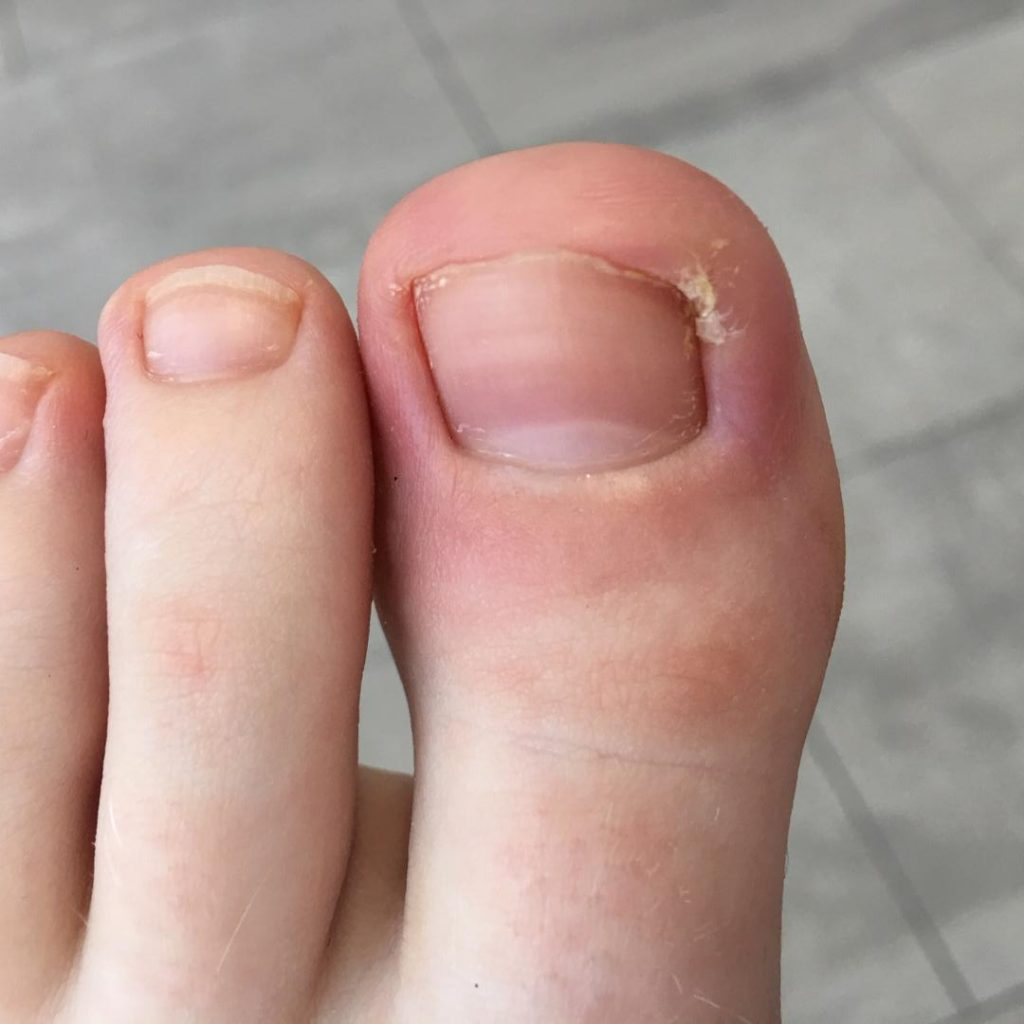 left ingrown sore nail