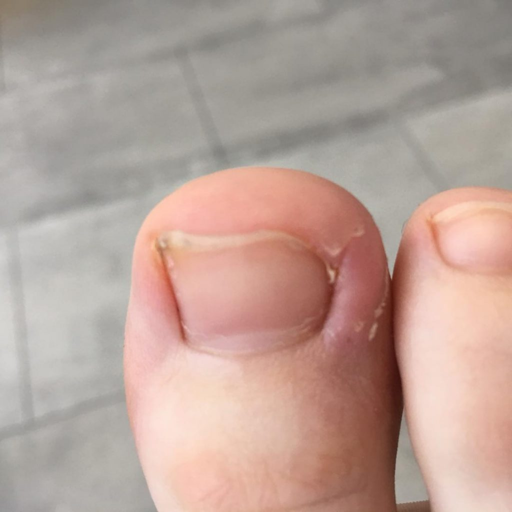 right ingrown sore nail